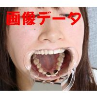 梨花ちゃん、口腔内調査にご協力下さい 画像データ