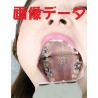 友里ちゃんの歯 ブリッジに差し歯に脱離 画像データ
