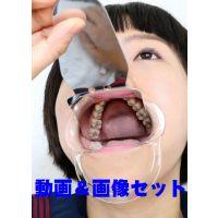 慶子ちゃんの歯 ★★動画&画像セット★★ 歯磨きがめんどくさーい