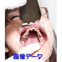 弥生ちゃんは元歯科助手 画像データ