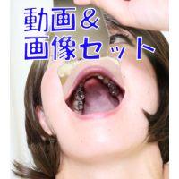 有紀ちゃん銀歯だらけ! ★★動画&画像セット★★