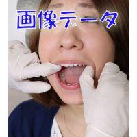 由香ちゃんの白い歯 画像データ