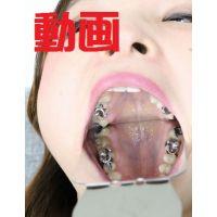 友里ちゃんの歯 ブリッジに差し歯に脱離 動画