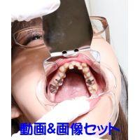 弥生ちゃんは元歯科助手なのに立派な銀歯が何本も ★★動画&画像セット★★