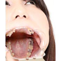 梨佳ちゃんの歯 前編 意外に意識低いです。