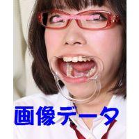 ミクちゃんの歯 インレーと治療痕とデンタルフロス 画像データ