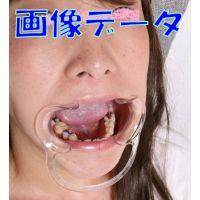 遥ちゃんの歯 満身創痍!画像データ