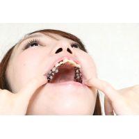 さきちゃんの歯 壮絶銀歯娘 なんでこんなになっちゃったの?