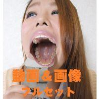 美佐の歯 ★★動画&画像フルセット★★ジロジロ見られ恥ずかしいを連呼