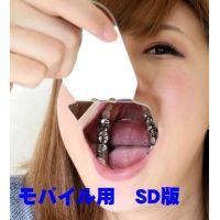 綾子ちゃんの歯。インレー脱離後、1年放置!立派なクラウン娘に SD版