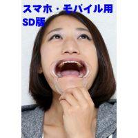 SD版 多佳子ちゃんの歯 歯医者4年行ってないとこうなるんですね
