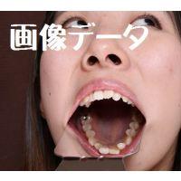 ひなの 画像データ ワンポイントの銀歯と差し歯