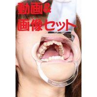 渚ちゃん★★動画&画像セット★★ 6〜7年歯医者行ってません