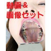 友里ちゃんの歯 ★★動画&画像フルセット★★ ブリッジに差し歯に脱離