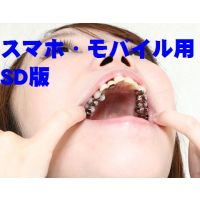 SD版 さきちゃんの歯 壮絶銀歯娘 なんでこんなになっちゃったの?