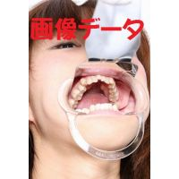 Teeth of Nagisa Photo