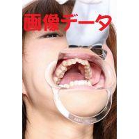 渚ちゃん 6〜7年歯医者行ってません 画像データ