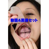 明日奈さんの歯 ★★お得な動画&画像セット★★