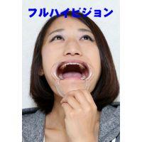 多佳子ちゃんの歯 歯医者4年行ってないとこうなるんですね FHD版