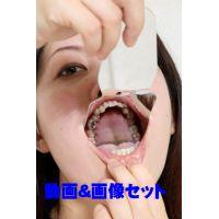 あかりちゃんの歯 ★★お得な動画&画像セット★★