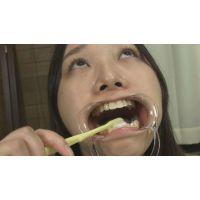 【セット】歯&開口器具使用で観察&歯みがきじっくり観察