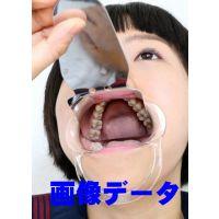 慶子ちゃんの歯 画像データ