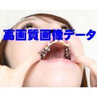 さきちゃんの壮絶銀歯 画像データ45枚