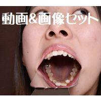 ひなの ★★動画&画像セット★★ワンポイントの銀歯と差し歯 意識低っ!