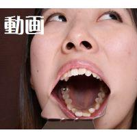 ひなの ワンポイントの銀歯と差し歯 意識低っ! 動画