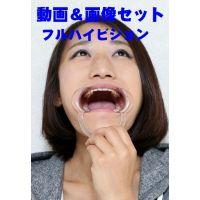 多佳子ちゃんの歯 ★★動画&画像セット★★歯医者4年行ってないとこうなるんです