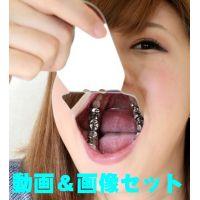 綾子ちゃんの歯★★お得な動画&画像セット★★インレー脱離後、1年放置!立派なク
