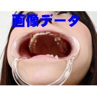 梨佳の歯 画像データ 53枚!