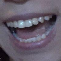 【口/唇/舌フェチ】モデルさんの口のアップ