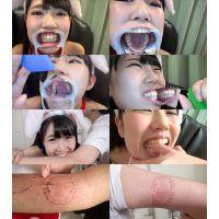 ひなたりこの歯と噛みつきシリーズ1〜2まとめてDL