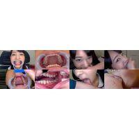 【特典動画付】あべみかこの歯と噛みつきシリーズ1〜2まとめてDL