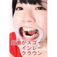 銀歯がいっぱい安達まどかちゃん