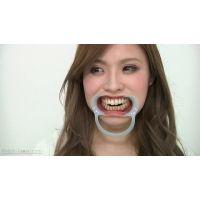 歯観察 山咲さくらちゃん(通常版+3D)
