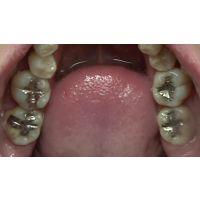 歯科医師映像 ねねちゃん