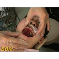 歯フェチ作品!歯科衛生士の口内観察わいせつ 2