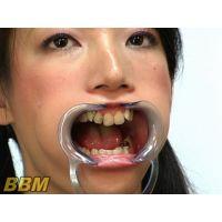 まゆみちゃんの歯のどちんこ