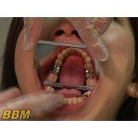 歯フェチ作品!歯科衛生士の口内観察わいせつ